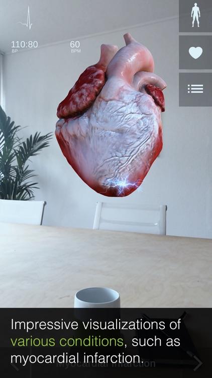 INSIGHT HEART screenshot-3