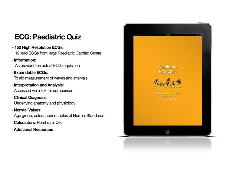 ECG: Paediatric Quiz