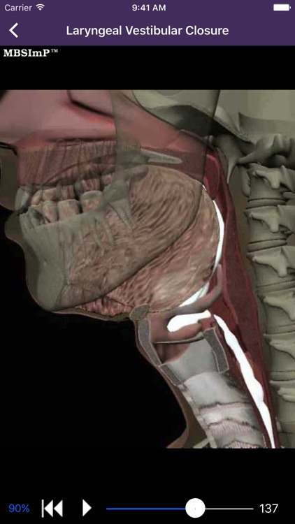 Dysphagia screenshot-3