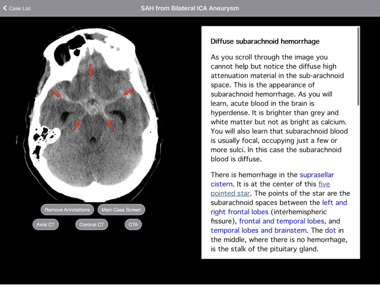 Radiology 2.0: Head CTs screenshot-3