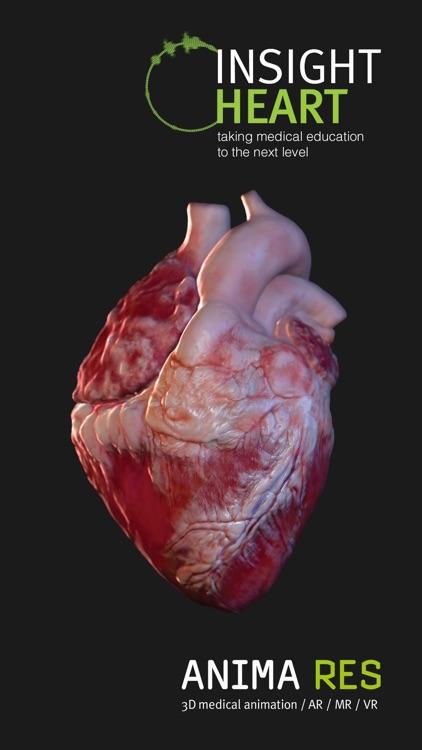 INSIGHT HEART screenshot-4