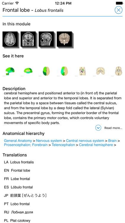 IMAIOS e-Anatomy screenshot-3