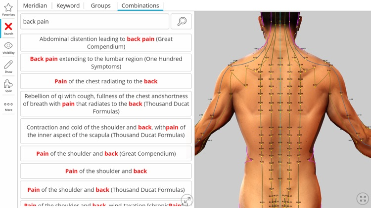 Visual Acupuncture 3D screenshot-3