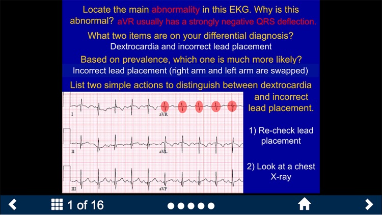 EKG - SecondLook screenshot-3