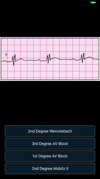ECG - Cases for CME & EMT screenshot-8