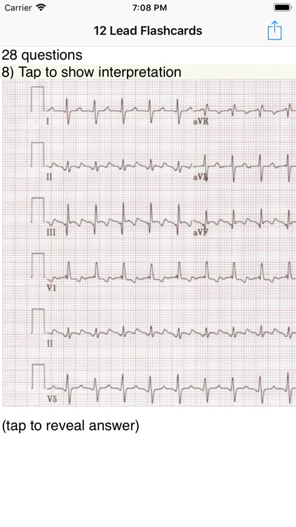 EKG Academy screenshot-0