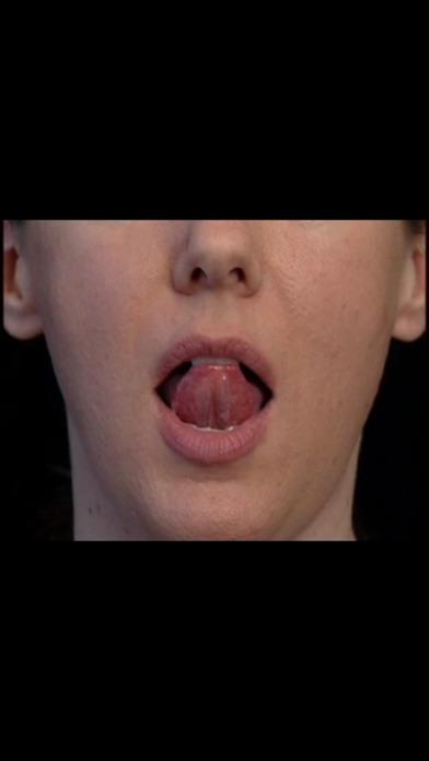 Smalltalk Oral Motor Exercises review screenshots