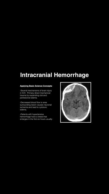 Neurology Blueprint PANCE PANRE Review Course