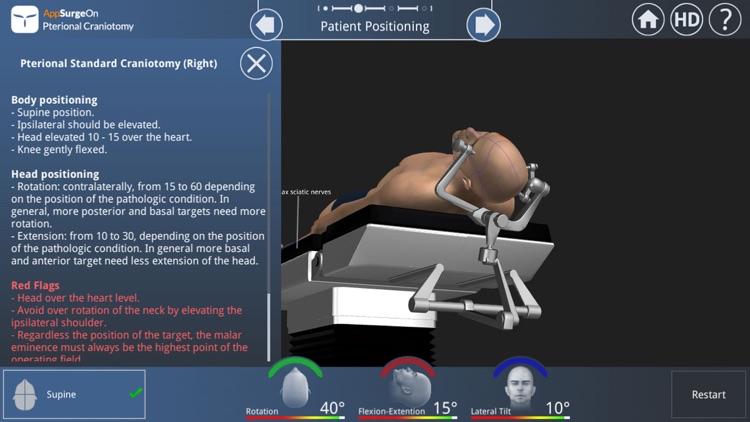 Pterional Craniotomy screenshot-3
