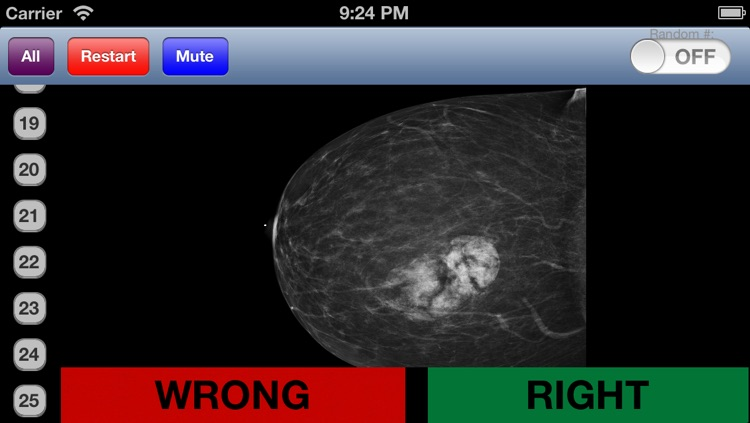Mammography Flashcards