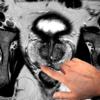 Imagerie du cancer de la prostate