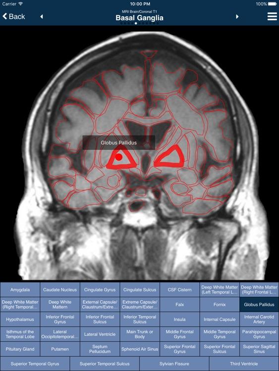 Nina: Neuroimaging In Neurology App (Full Version) screenshot-3