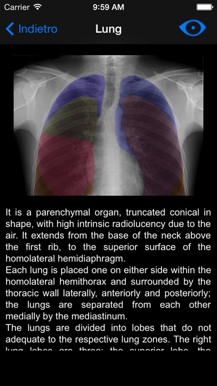 Chest X-ray screenshot-2