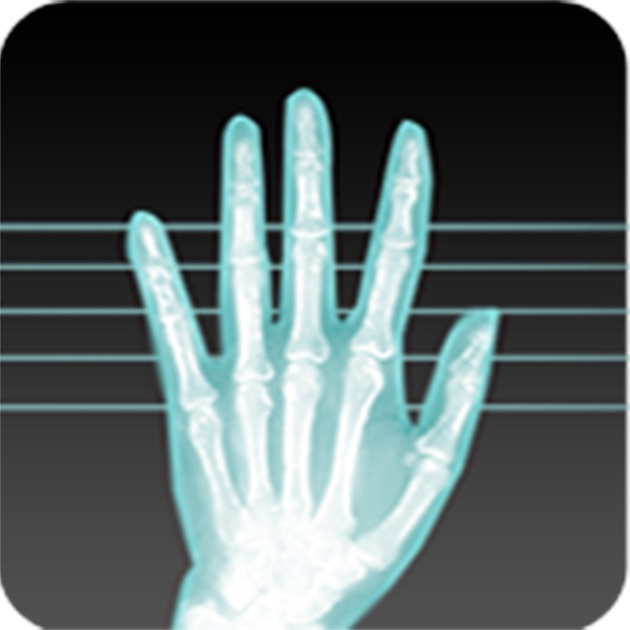 x ray blackberry download free