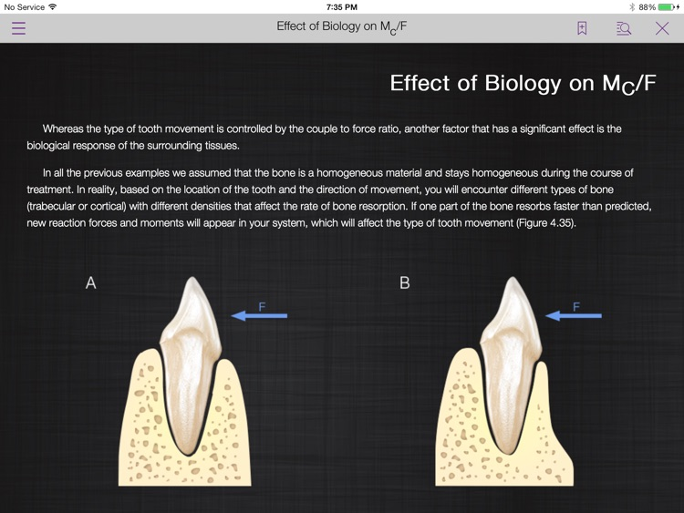 Mechanotherapy in Orthodontics Vol.1