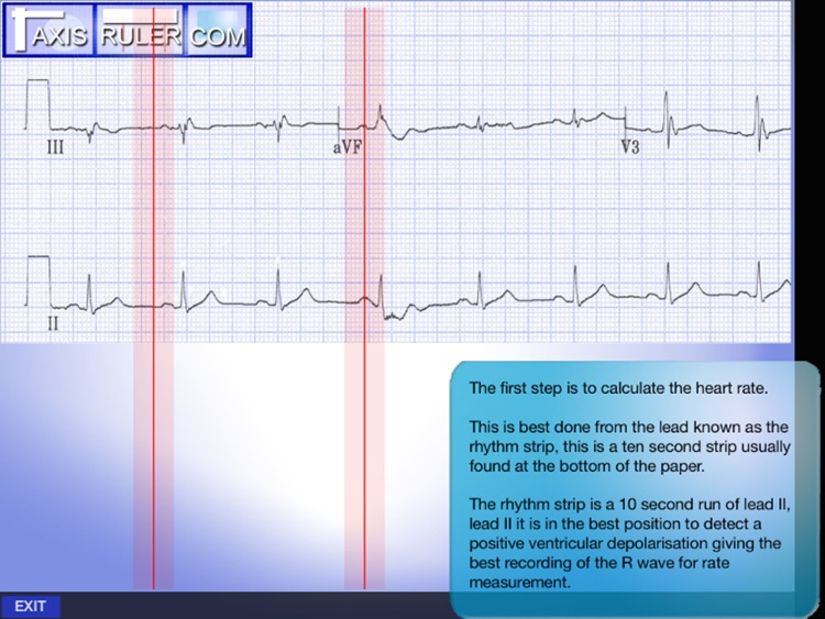 ECG Genius screenshot-3