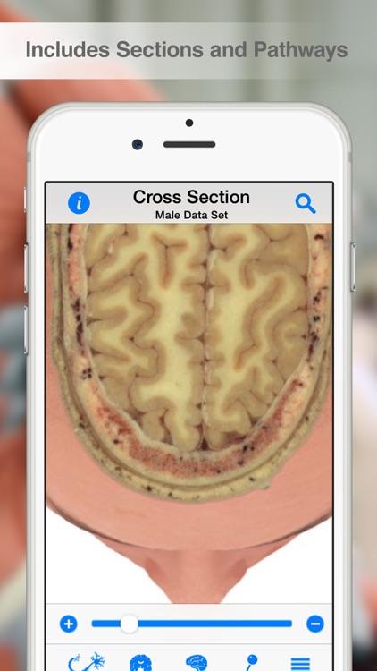 Pocket Brain screenshot-3