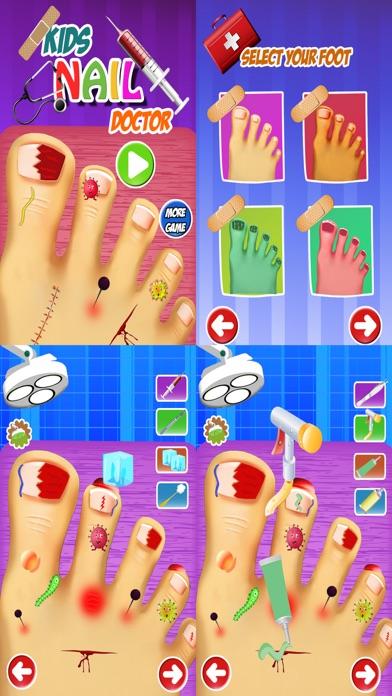 クレイジー小さなモンスターつま先爪仮想外科ドクター - 無料の楽しい子供病院ゲームのスクリーンショット1