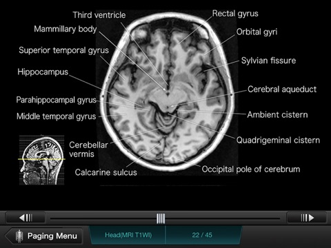 Interactive CT and MRI Anatomy | App Price Drops