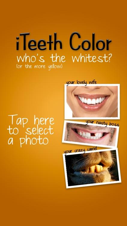 iTeeth Color : my teeth color ?