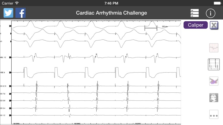 Cardiac Arrhythmia Challenge PRO screenshot-3