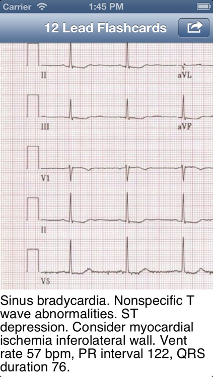 EKG Academy: Electrocardiogram Study Guide
