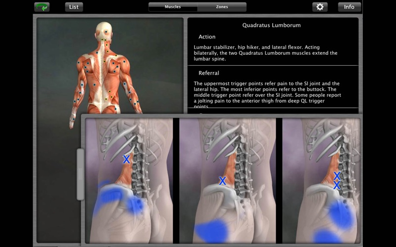 Muscle Trigger Point Anatomy | App Price Drops