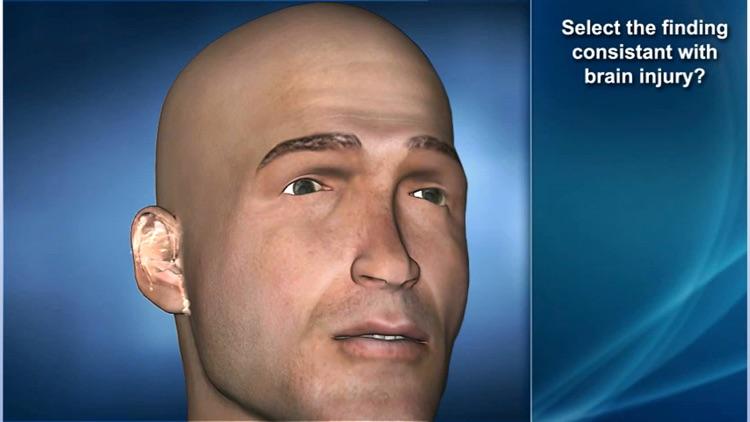 Medrills: Skull and Brain Injuries