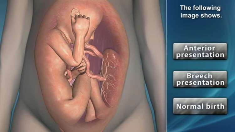 Medrills: Obstetrical Emergencies screenshot-2