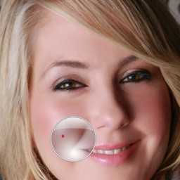 Zit Zapper Pro - Airbrush your face and remove pimples and acne