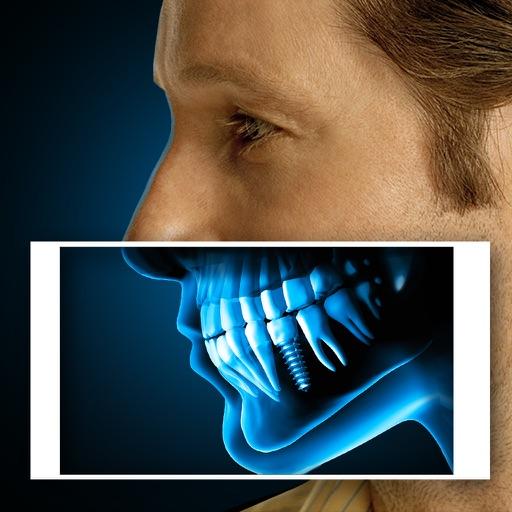 X-Ray Human Teeth Joke iOS App