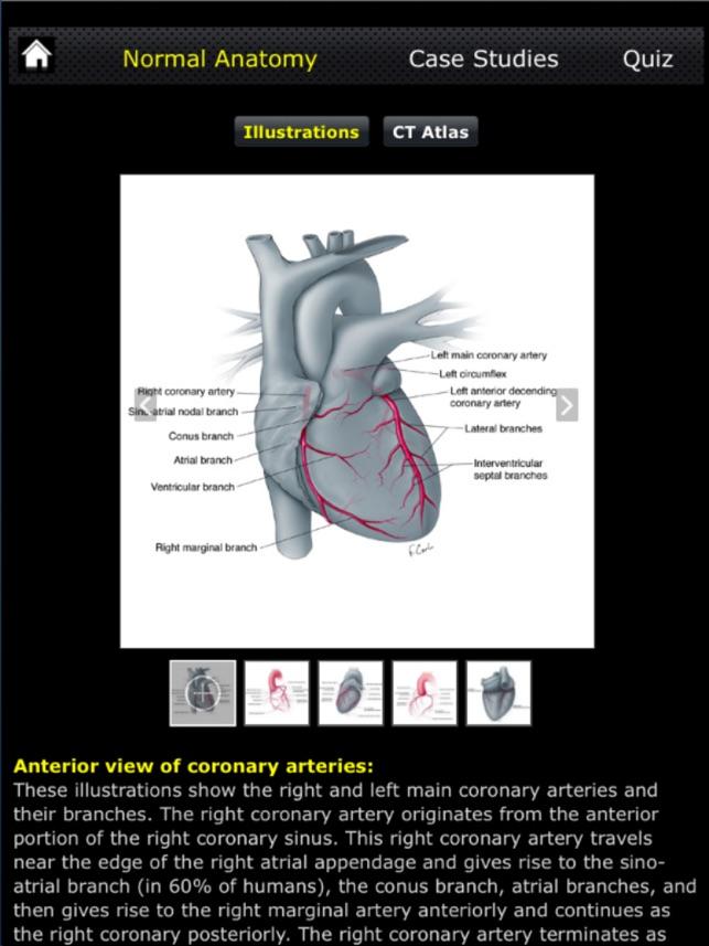 Ctisus Ct Of The Coronary Arteries On The App Store