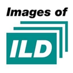 Images of ILD
