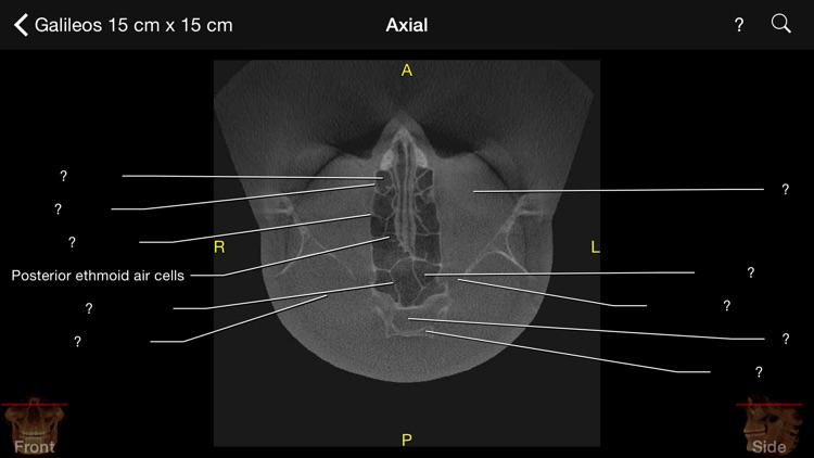 CBCT screenshot-4