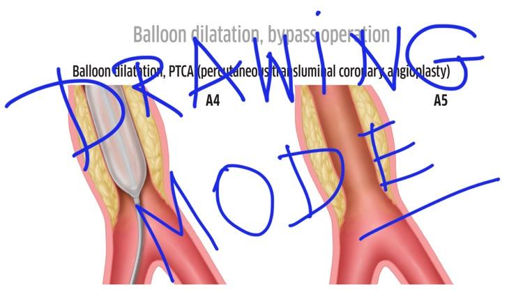 Patient Education Institute screenshot-3