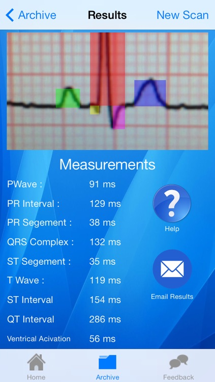 Doctor ECG - ECG Scanner, Guide and Calculator screenshot-3