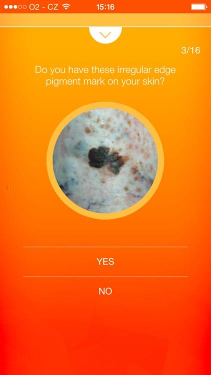 Melanoma Test - risk calculator of skin cancer