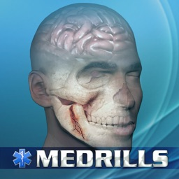 Medrills: Skull and Brain Injuries