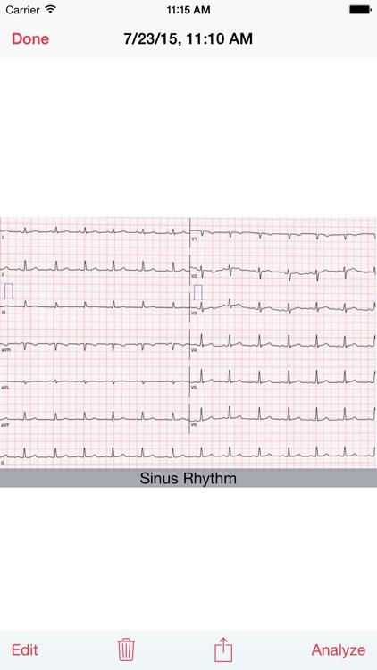 Photo EKG screenshot-3