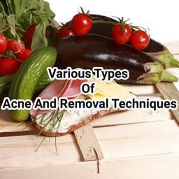 Acne And Removal Techniques