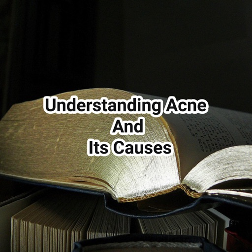 Acne And Its Causes