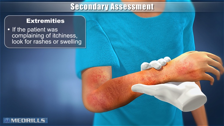 Medrills: Pediatric Assessments screenshot-1