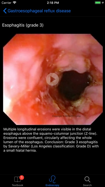 ENDO3® Gastrointestinal Atlas screenshot-2