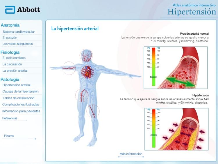 Atlas Hipertension Abbott CA by Ediciones Internacionales BCA S.A.