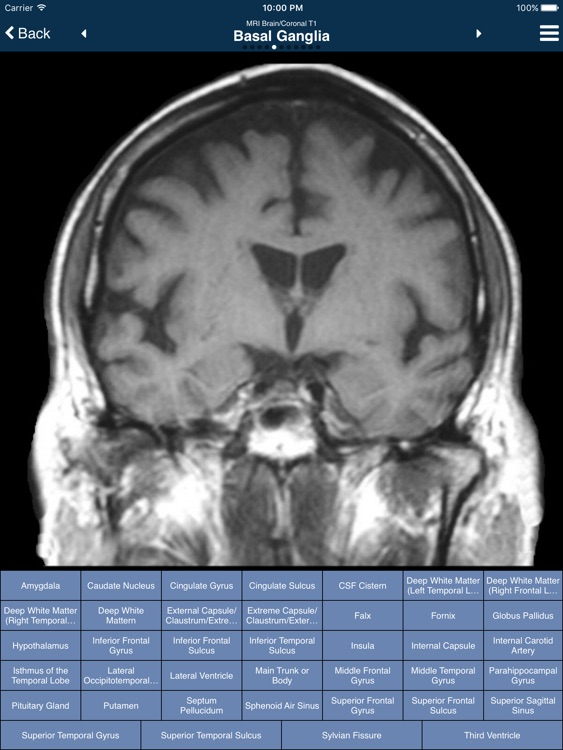 Nina Neuroimaging in Neurology screenshot-2