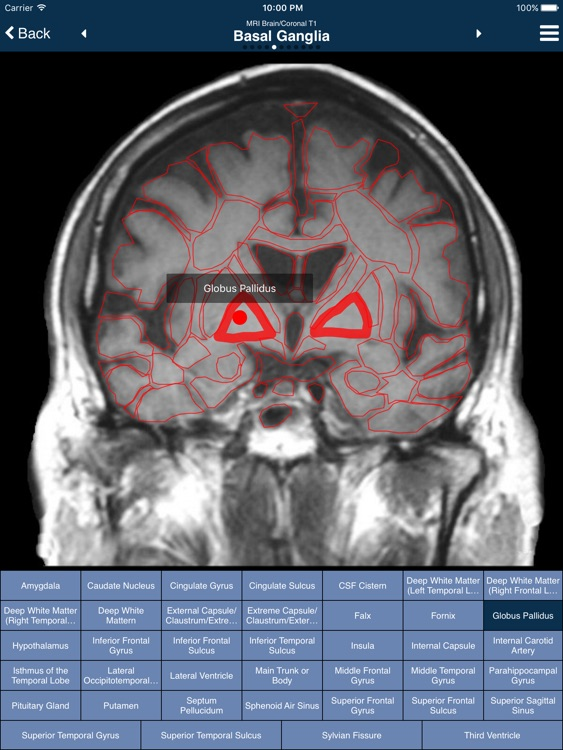 Nina Neuroimaging in Neurology screenshot-3