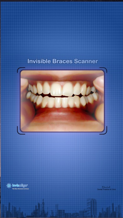 Invisible Braces Scan screenshot one