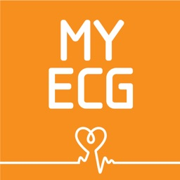 My ECG