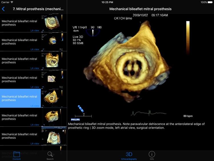 CARDIO3® Atlas of 3D Echocardiography [HD]