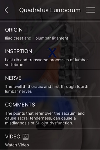 Muscle Trigger Points screenshot 4